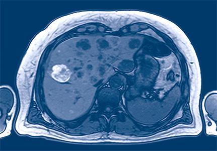 unübliche metastasen bei brustkrebs