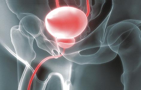 entscheidungshilfe prostatakrebs de
